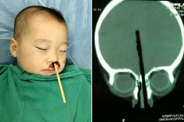 "In China, doctors pulled chopstick out of two-year-old boy""s head"