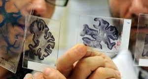 Scientists find link between brain infections and Alzheimer's