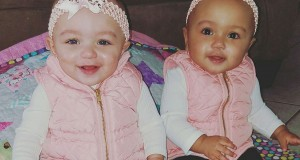 Biracial Twins Born in Illinois: 'It's So Rare!'
