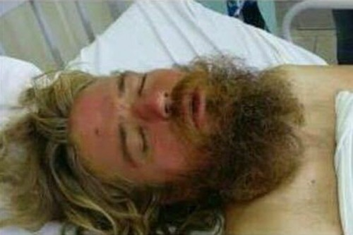 Anton pictured recovering in a Brazil hospital before he was flown home to Toronto (Photo: Missing persons of america)