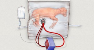 Scientists Create Artificial Womb That Could Help Prematurely Born Babies