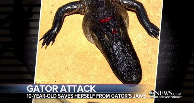 10-year-old girl in Florida pries open gator's mouth to free her leg